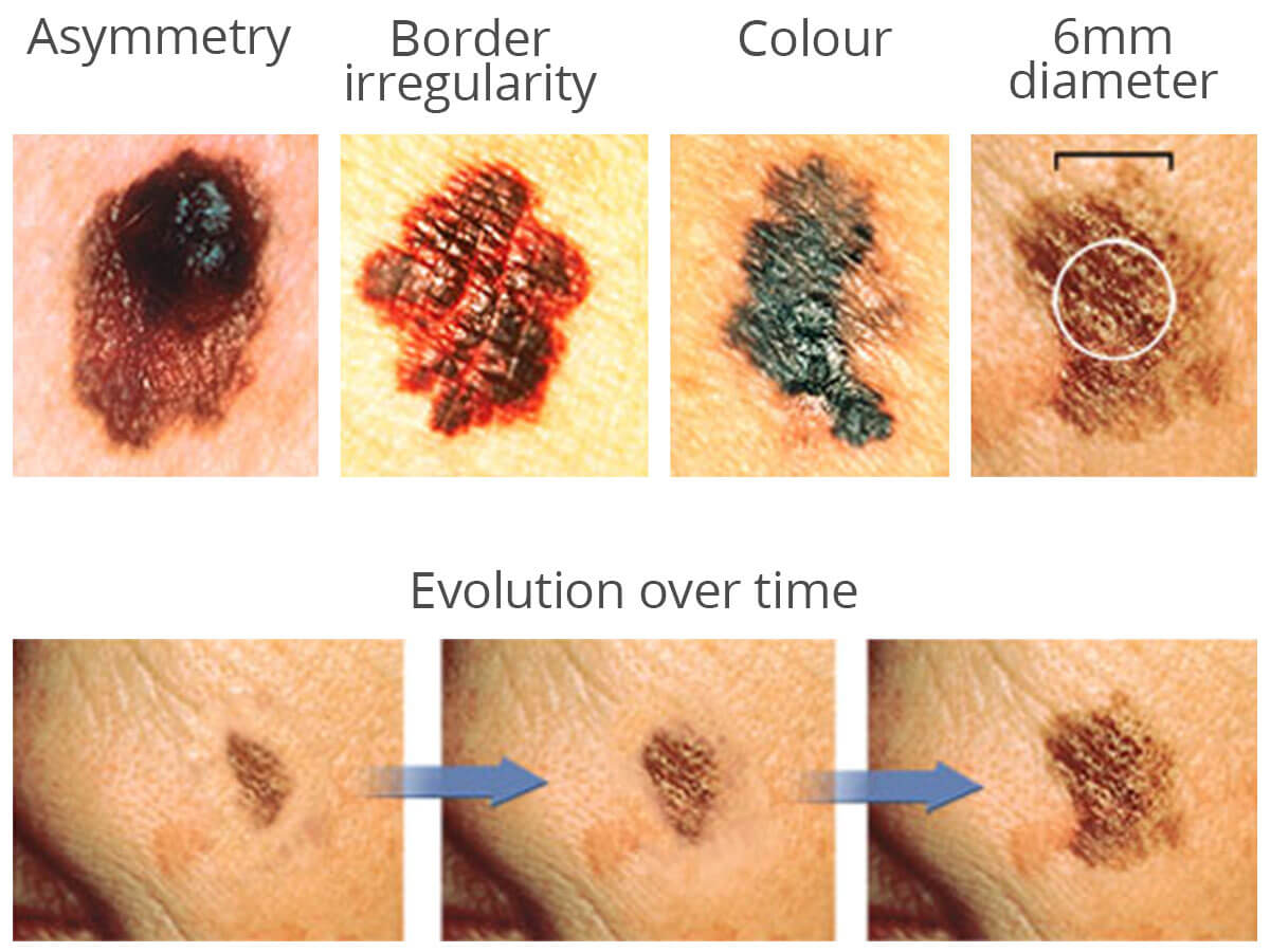 Early Skin Cancer Moles Toowong | Skin Cancer ...