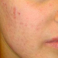 Toowong | Acne Scar Treatment